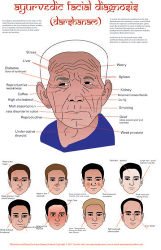 Facial diagram of diagnosis